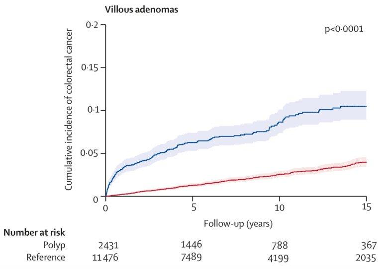 Polyps And Colorectal Cancer Risk Karolinska Institutet Nyheter