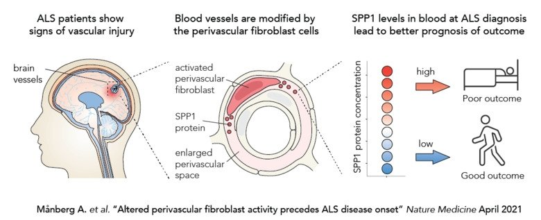 The study presents a cell in the brain blood vessels as a possible explanation for the varying disease course in ALS. The results highlight a previously unknown relationship between the nervous and vascular systems in ALS.
