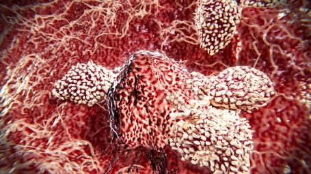 T cells and NK cells attack cancer cell.